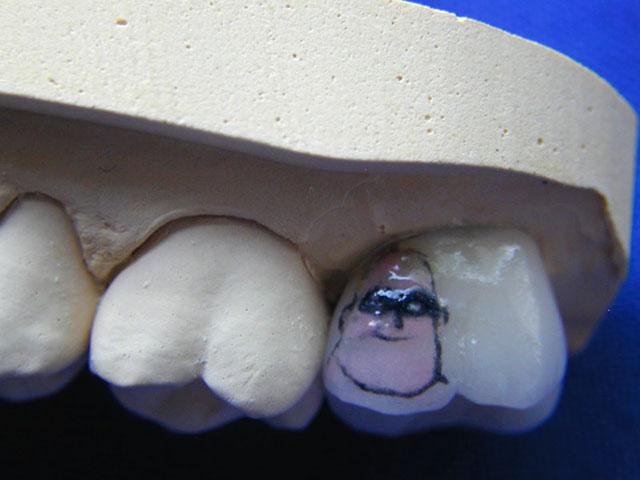 Чем покрыть чёрный зуб